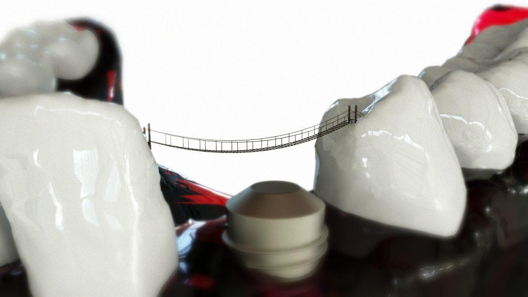 implant dentar pentru un singur dinte
